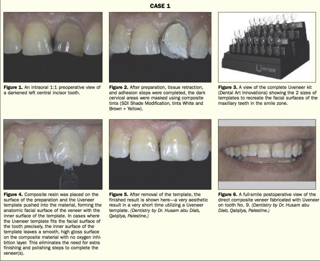 Uveneer Case Study #1. Featured in Dentistry Today