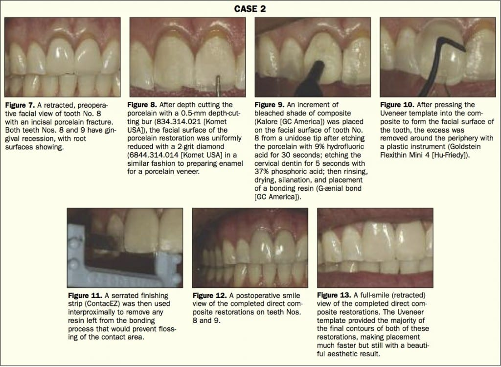 Uveneer Case Study #2. Featured in Dentistry Today
