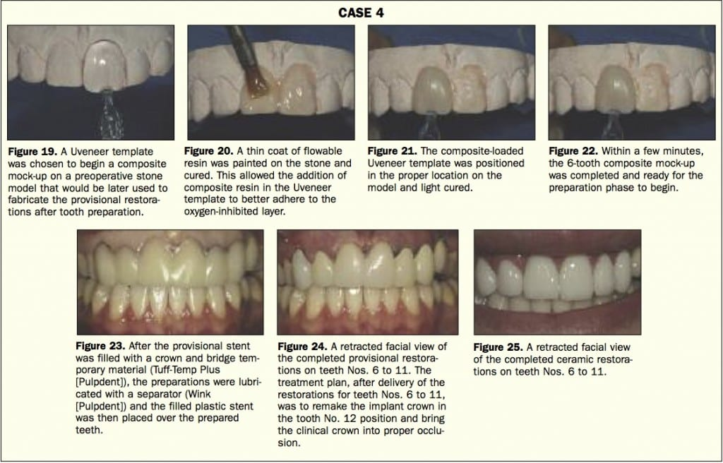 Uveneer Case Study #4. Featured in Dentistry Today
